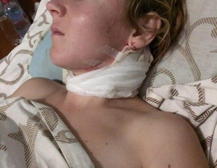 Молода матуся, яку порізав чоловік, потребує вашої допомоги (ФОТО 16+)